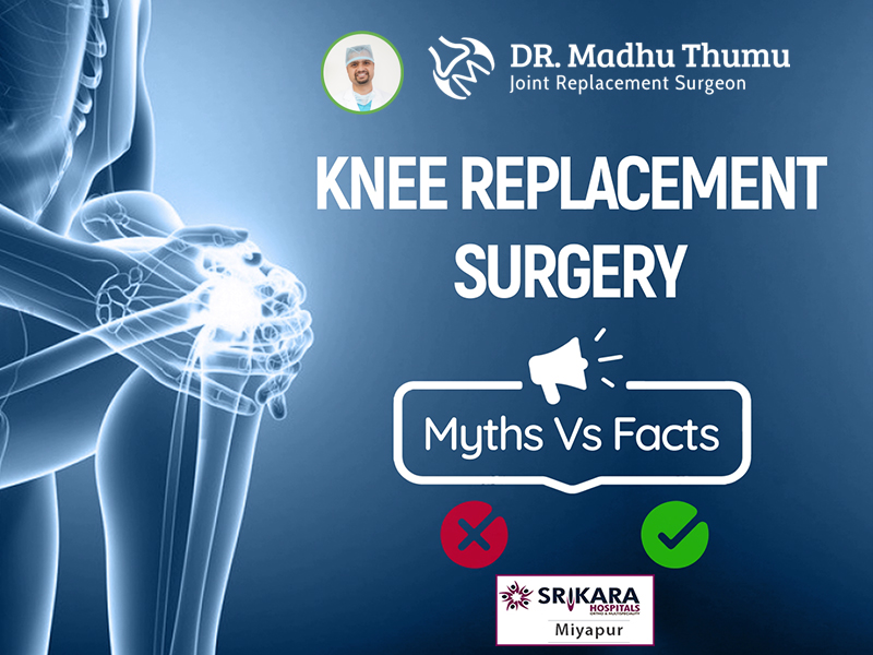 Knee Replacement Surgery: Myths Vs Facts
