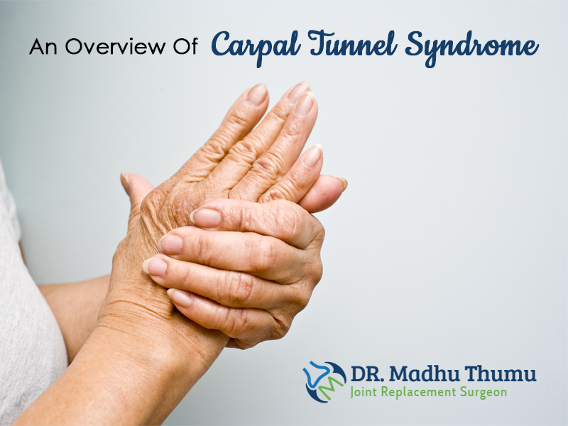 An Overview Of Carpal Tunnel Syndrome