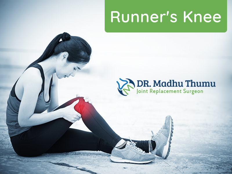 Runner's Knee – An Overview