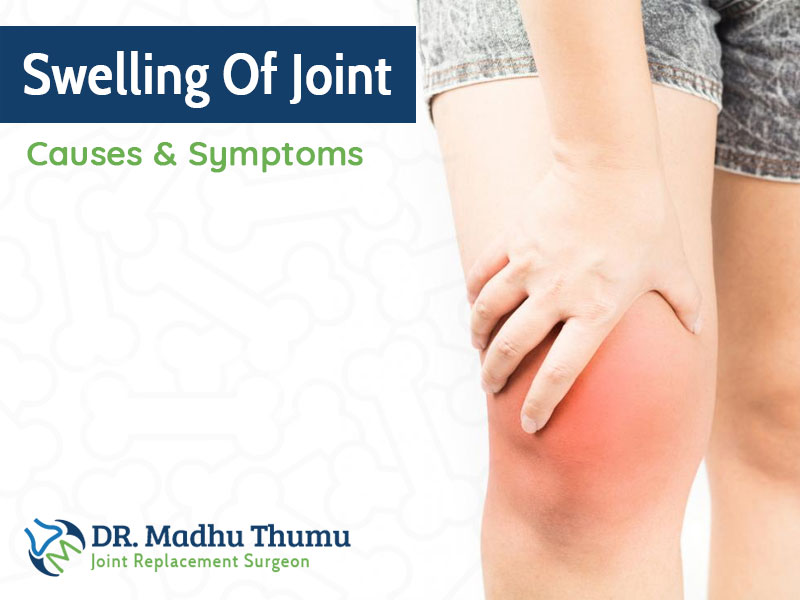 Swelling Of Joint: Causes & Symptoms