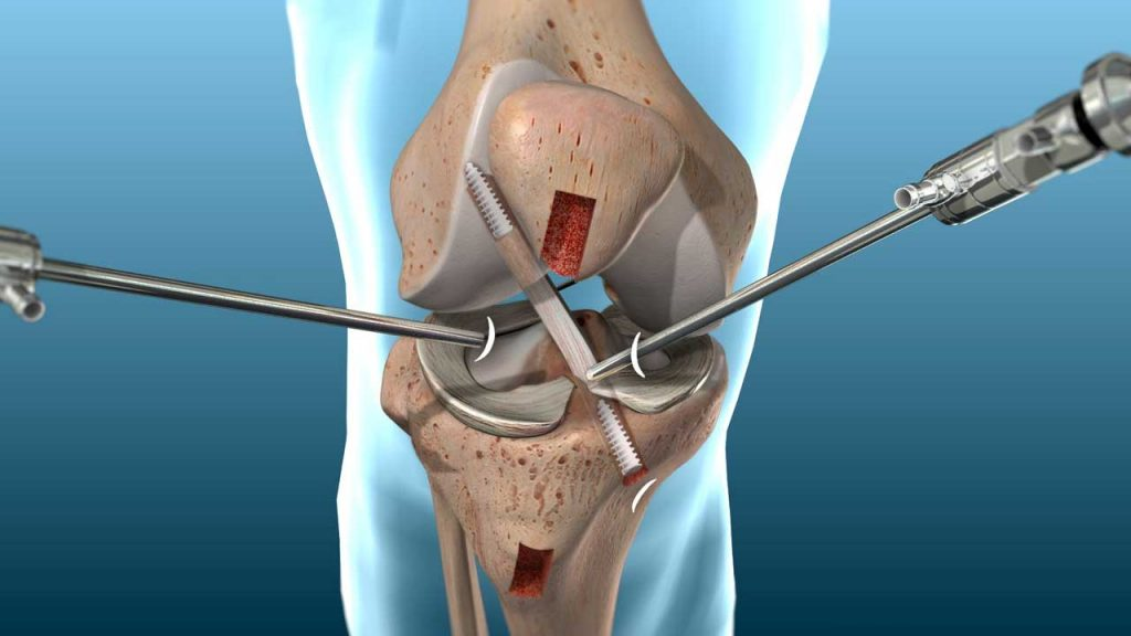 ACL Reconstruction Surgery in Hyderabad