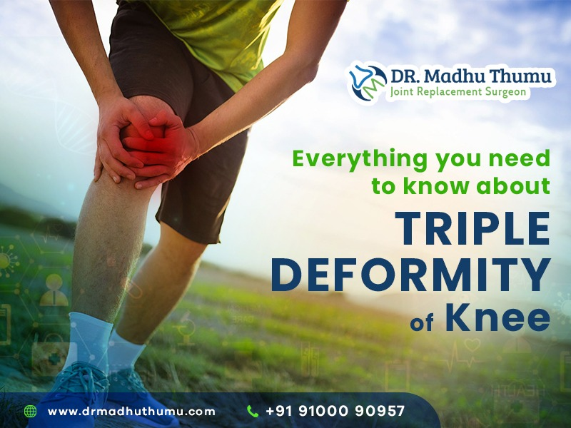 Triple Deformity of Knee Joint