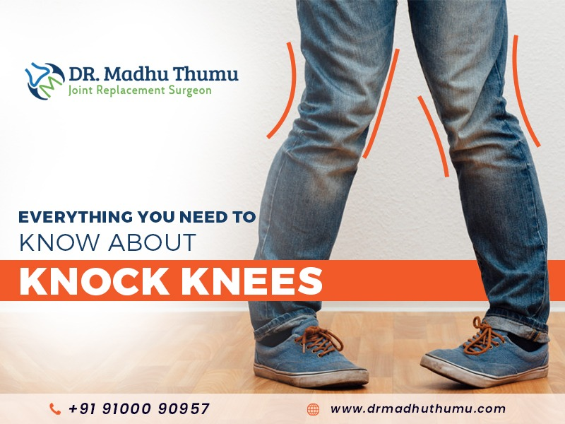 How to correct knock knees